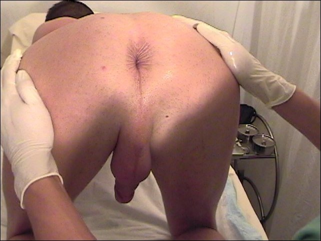 Anus medical view male, furry big cock comic
