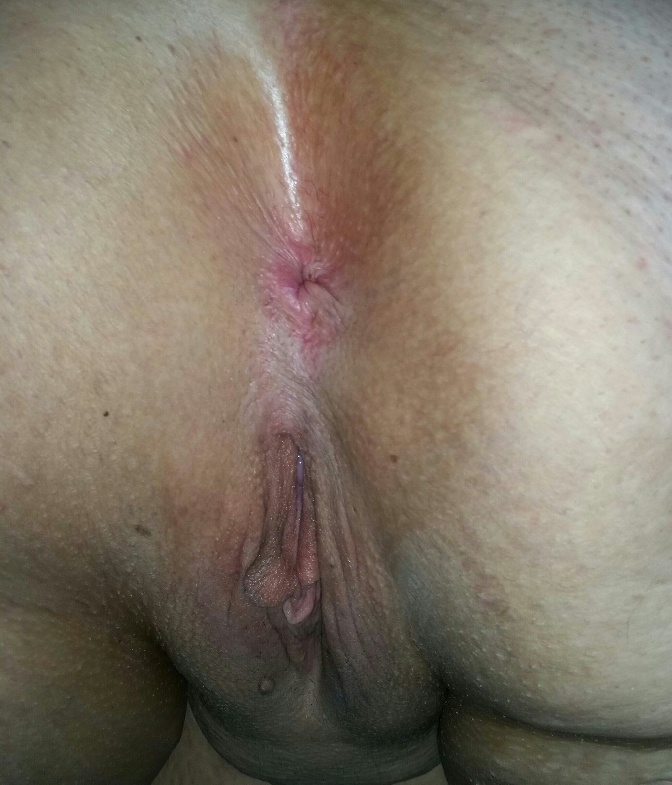 Homegrown hairy red anal