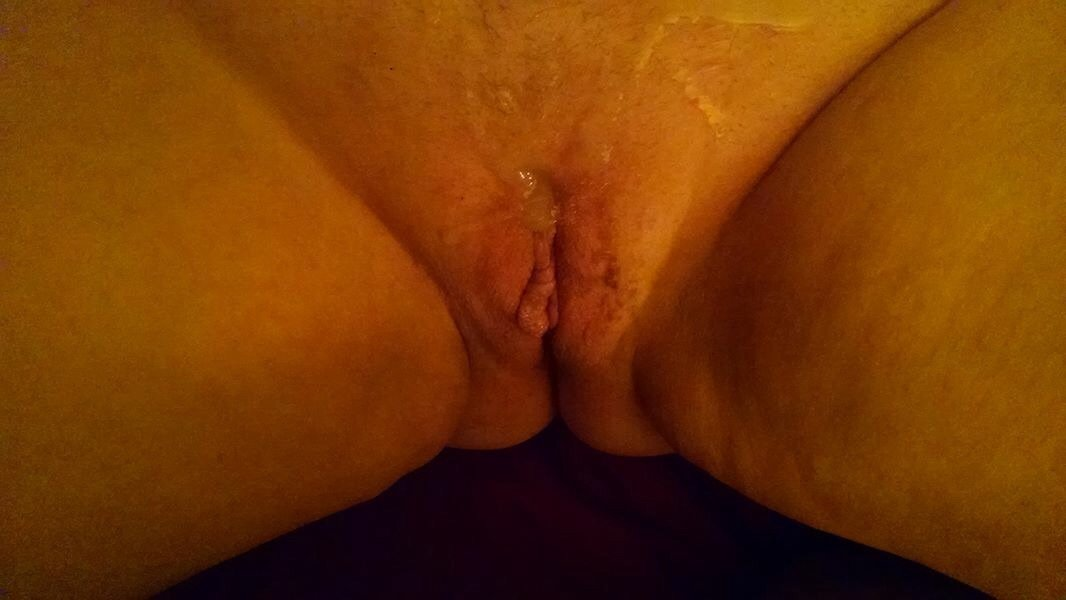 Lucien reccomend Youporn wifes pussy Penis with rashes