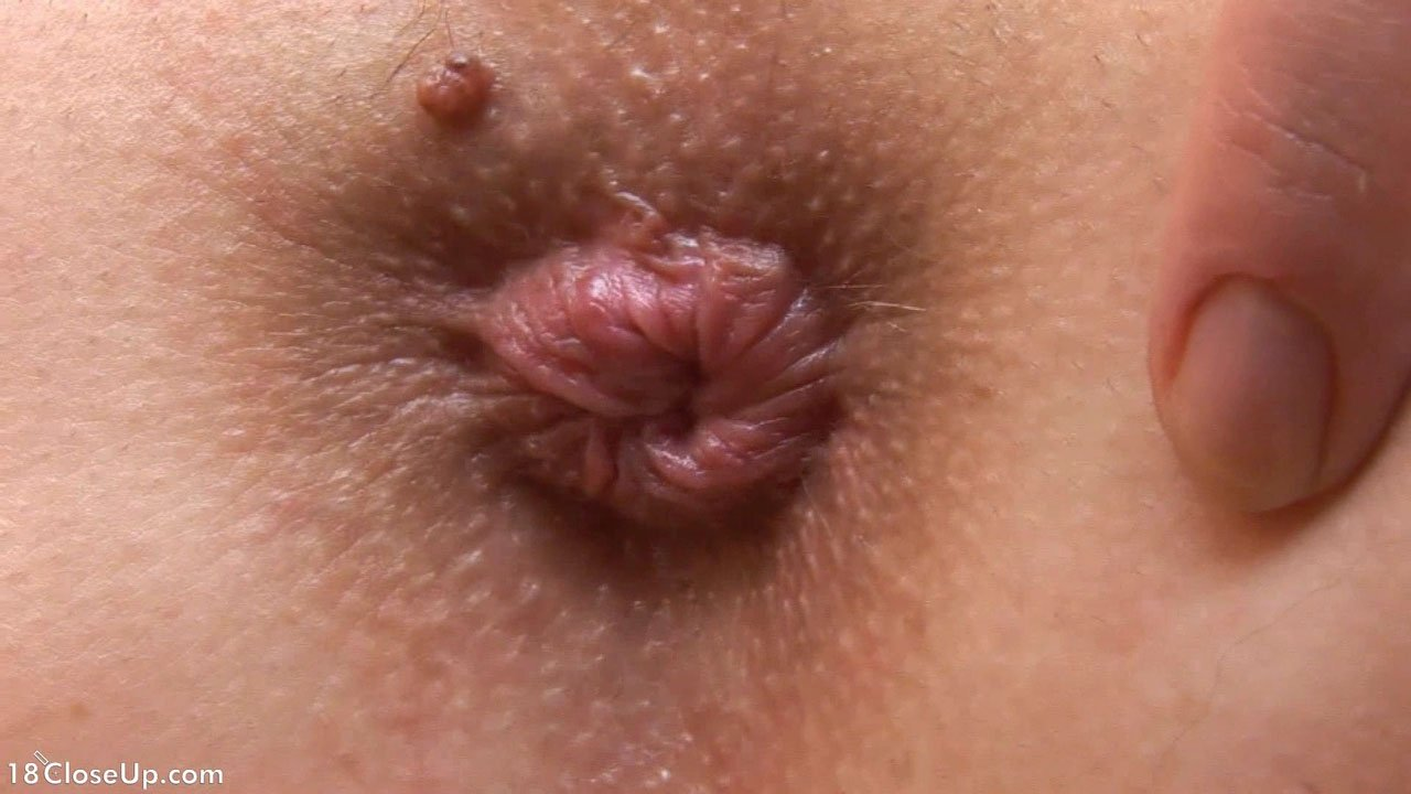 Small white bumps in anus — img 15